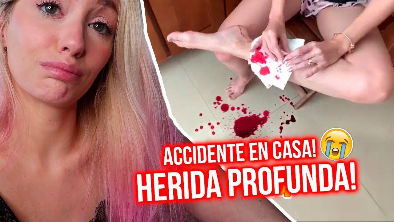 ACCIDENTE en CASA me PROVOCA HERIDA GRAVE! EL PEOR DÍA DE MI VIDA 😭 | Katie Angel  #Trend