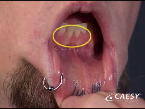 Tongue Piercing Gone Really Wrong