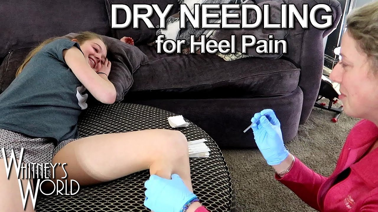 Dry Needling for Heel Pain | Whitney Bjerken Gymnastics #Orthopedicsurgery