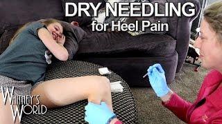 Dry Needling for Heel Pain | Whitney Bjerken Gymnastics