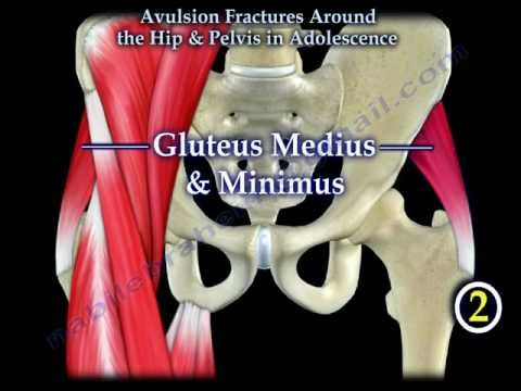 Avulsion Fractures Around The Hip In Adolescence - Everything You Need To Know - Dr. Nabil Ebraheim