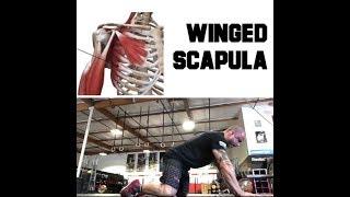 Winged Scapula Repair | Trevor Bachmeyer | SmashweRx