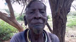 Baringo County residents affected by cataracts adviced to seek medical attention