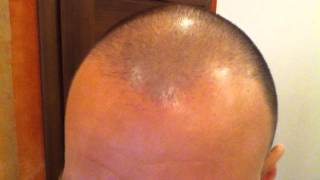 Day 82 Hair Regrowth Experiment with Rogaine Minoxidil 5%