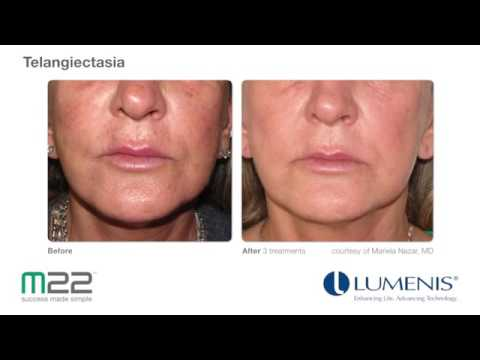 M22 IPL Photofacial Results Video