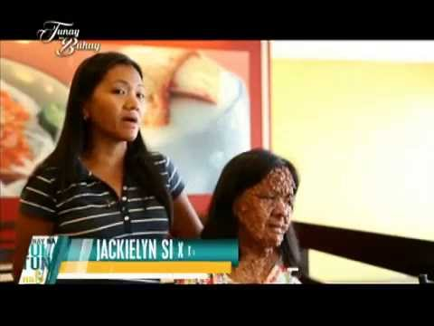 Woman with neurofibromatosis learns the truth about her condition | Tunay na Buhay
