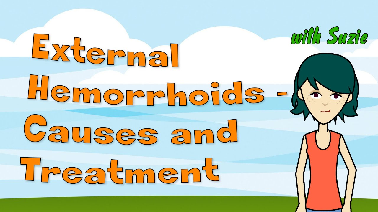 external hemorrhoids - causes and treatment - youtube, Human Body
