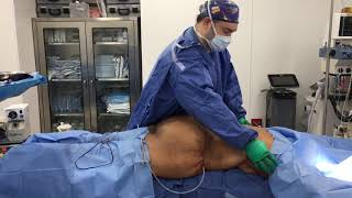 Dr. Hughes commonly performs bra line back lift and lower posterior...