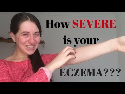 How SEVERE can ECZEMA be?