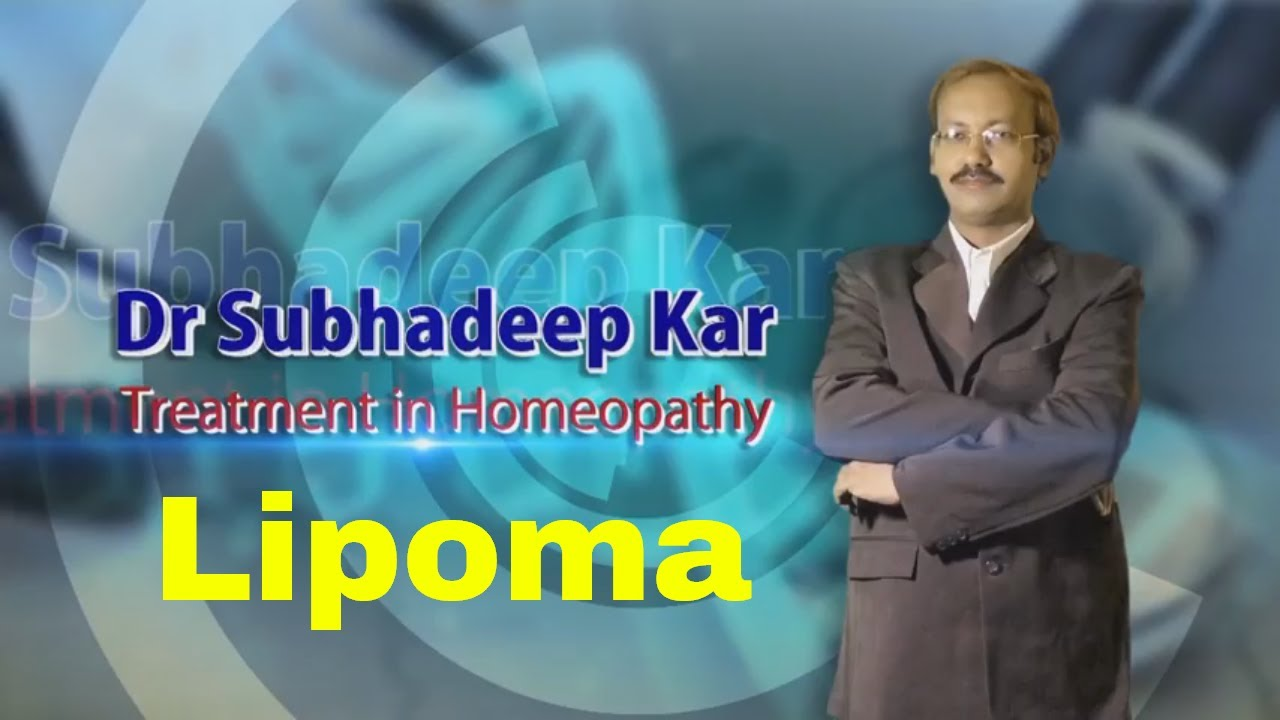 Homeopathic medicine for lipoma treatment without surgery #1
