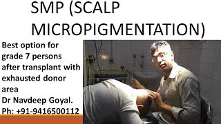 SMP Scalp micro pigmentation for hair loss. Following FUE and FUT. Dr Navdeep Goyal