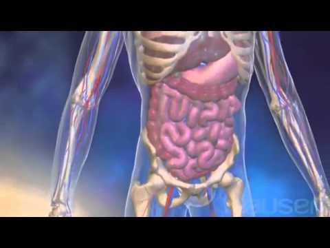 МСЭ и инвалидность при хроническом лимфолейкозе