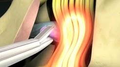 hqdefault - Upper Back Pain Wiki