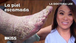 La Doctora Lee Y Una Piel Llena De Escamas