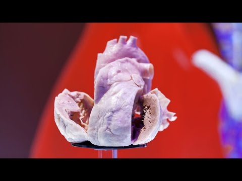 Global Hearts: Confronting the Cardiovascular Disease Crisis