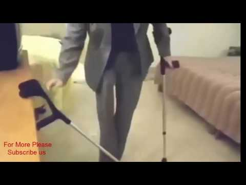 One Legged Amputee girl with Double Crutches walking