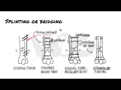 Principles Of Fracture Fixation   Orthopedic Basics