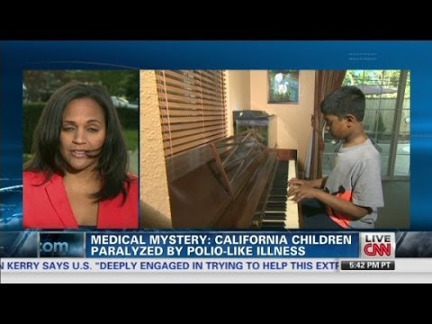 Dozens hit by mysterious polio-like illness