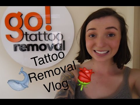 Tattoo Removal #vlog