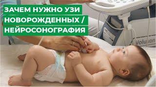 Зачем нужно УЗИ новорожденных / Нейросонография г.Кострома / МЦ МИРТ