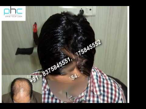 Hair weaving in delhi ncr noida gurgaon india youtube hair weaving in delhi ncr noida gurgaon india pmusecretfo Gallery