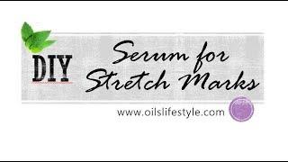 DIY Essential Oil Recipes - Stretch Mark Serum