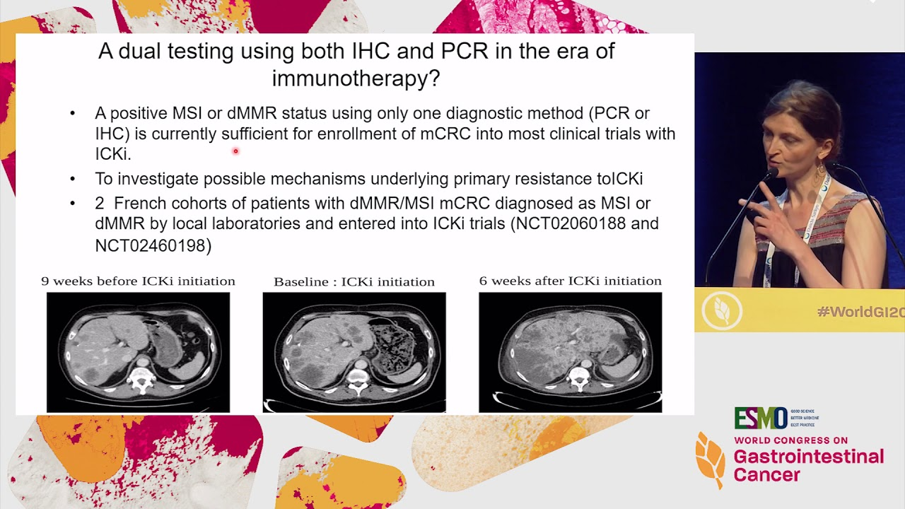 Colorectal Cancer Msi Testing To All Patients And How To Test Youtube