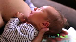 Engorgement After Giving Birth