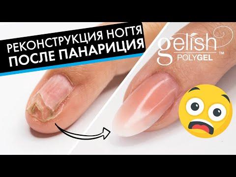 ПОСЛЕДСТВИЯ ПАНАРИЦИЯ спустя 4 месяца: восстанавливаем ноготь полигелем после инфекции и операции!