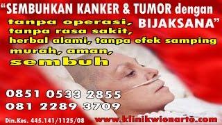 Video Makanan Pencegah Kanker Payudara download MP3, 3GP, MP4, WEBM, AVI, FLV September 2018