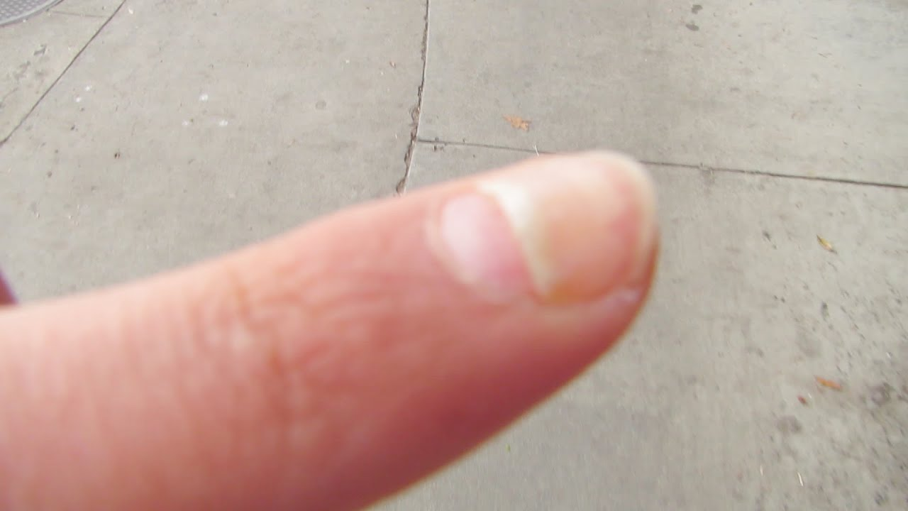 MY FINGERNAIL IS FALLING OFF! - YouTube