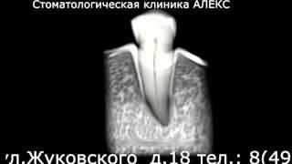 Эндодонтическое лечение зубов в Стоматологической клинике АЛЕКС(, 2014-04-19T08:34:13.000Z)