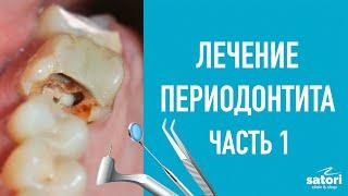 Лечение периодонтита – первое посещение. Переодонтит и лечение каналов зуба.