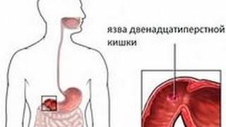 видео Язва желудка и двенадцатиперстной кишки - Симптомы
