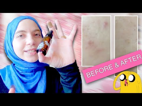 acne-scares-permanent-removal-transformation-(1-month-testing)