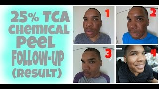 chemical peel   25 tca peel follow up results hd   session 4
