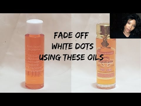 How To Fade Off White Dots | White Dot Treatments | White Patches On Skin