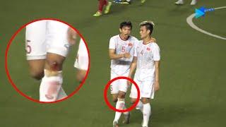 Gambar cover Văn Hậu chân be bét m áu sau khi ghi siêu phẩm vào lưới Indonesia | Next Sports