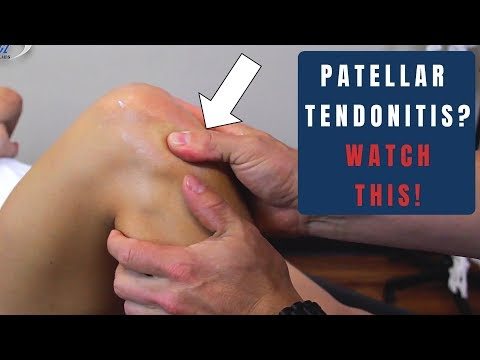 Knee Series (2 Of 5): 9 Patellar Tendonitis Treatments/ Assessments