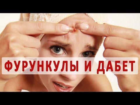 Фурункул - лечение, причины, фото, мазь от фурункулов