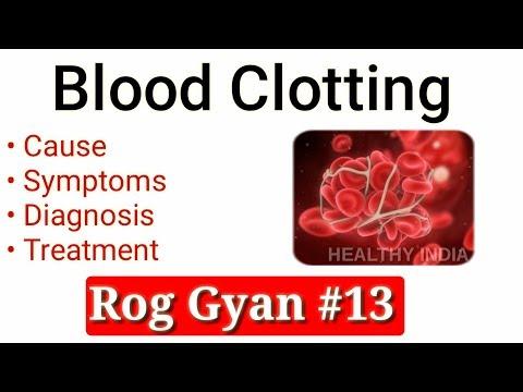 Rog Gyan #13 - Blood Clot Causes, Symptoms, Diagnosis & Treatment
