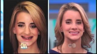 Dr. Kupferman On The Doctors TV Show Smile Makeover Team