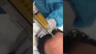 New PRP Hair Loss Treatment Sydney, Wahroonga, Canberra, Perth PH 1300885808