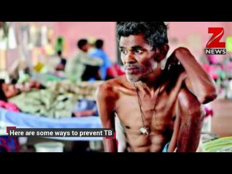 Tuberculosis: Five simple ways to prevent the disease!
