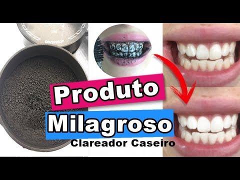 Produto Que Clareia Rapidamente Os Dentes Elimina Placas E Mau