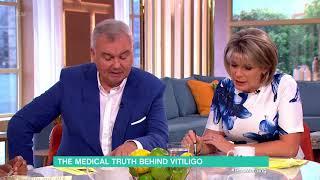 The Medical Truth Behind Vitiligo | This Morning