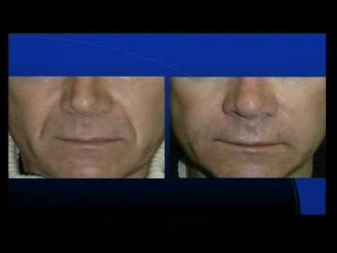 Lambulanza di pacco di faccia lussureggiante di 495 sfrega