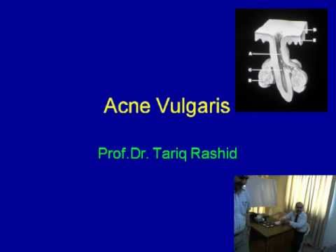 Management of Acne Vulgaris