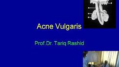 hqdefault - European Dermatology Forum Acne Guidelines