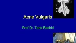 hqdefault - Guidelines Of Care For Acne Vulgaris Management Strauss